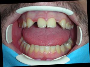 implantologia dentale