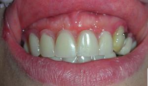 implantologia studio dentistico carbone