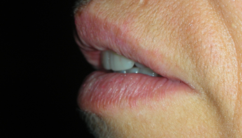 implantologia dentale studio dentistco