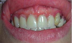 implantologia studio dentistco